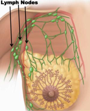 lymph-nodes1