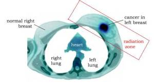 breast_pet_CT_left_sah_radiation